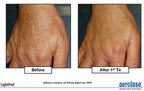 brownspot_before-and-after