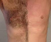 hairremovalFAQ_laser-hair-removal-men