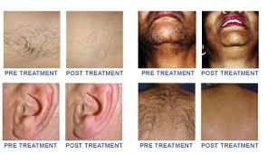 hairremovalFAQ_laser-hair-removal-upper