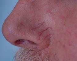 spiderveins_nose-veins